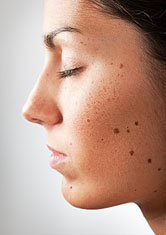 Moles and birthmarks